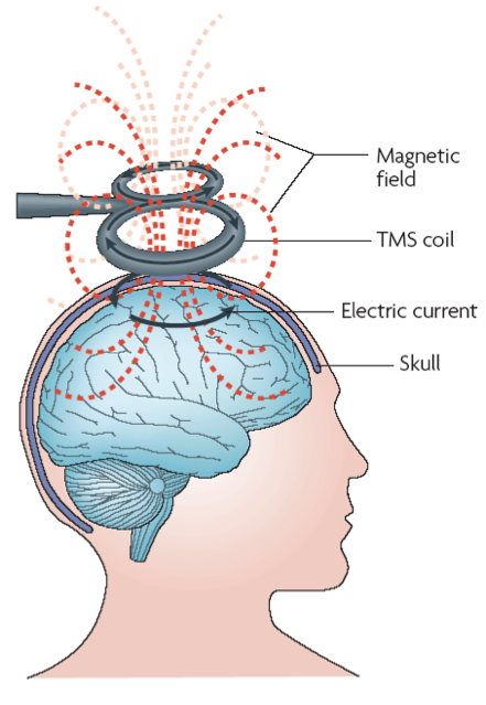 Visual illustration of the induction of electrical currents in the brain.